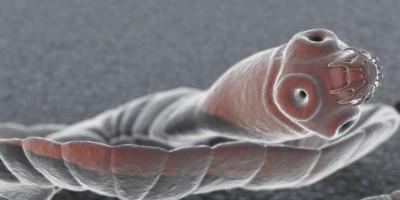 Human Tapeworm